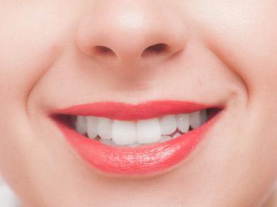 ホワイトニング前に歯の表面の着色汚れをオフ!