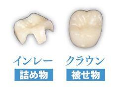 プルミエ歯科にてセラミック治療を体験!