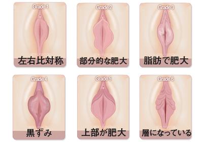 小陰唇肥大の特徴