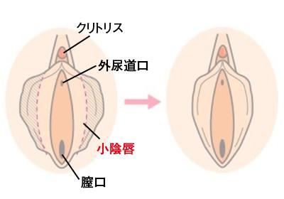 小陰唇縮小術の方法