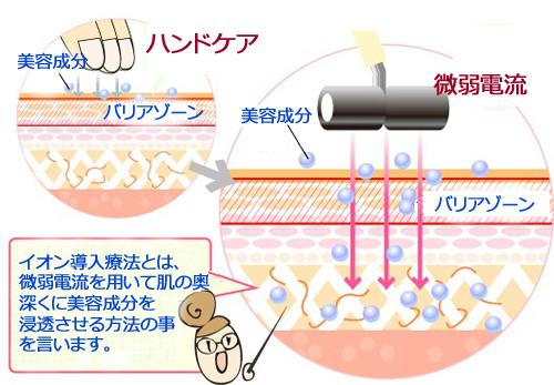 イオン導入の作用イメージ1