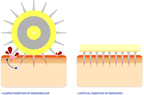 ダーマロ-ラー&ダーマペンの作用イメージ