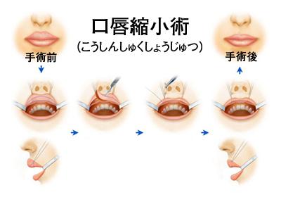 唇を薄くする手術(口唇縮小術)...