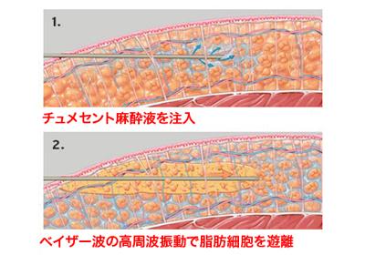 ベイザー脂肪吸引施術イメージ1