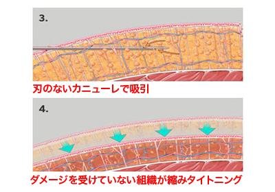 ベイザー脂肪吸引施術イメージ2