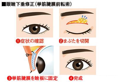 眼瞼下垂修正法の流れ