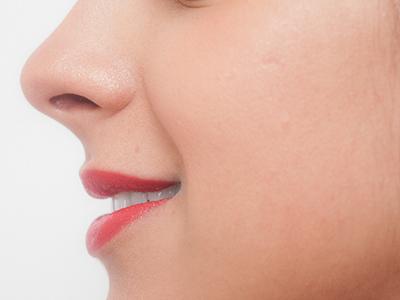 ボツリヌストキシン注射 プチ整形鼻