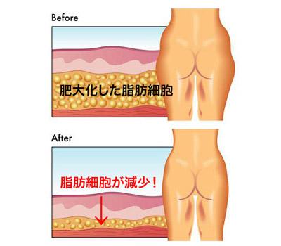 脂肪吸引〈太ももと腰回り〉の施術イメージ