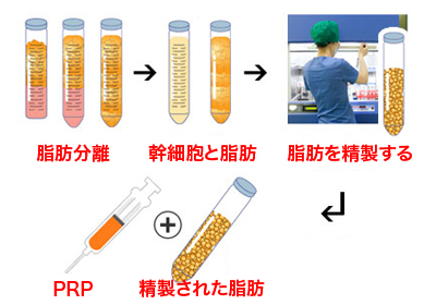 PRP脂肪注入の流れ