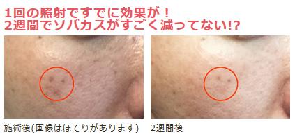 【フォトフェイシャルM22】1クール(5回)の治療でシミ・ソバカスはどこまで薄くなるのか検証!