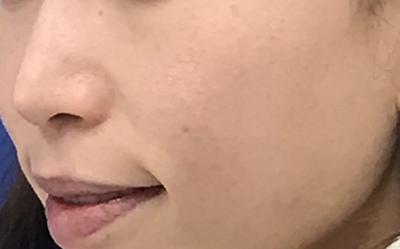 フォトフェイシャル®M22(新宿ラクル美容外科クリニック編)【アリュクス美人部 読者モデル体験】
