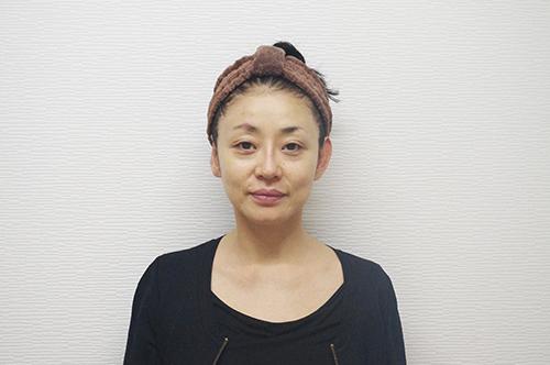 フォトフェイシャル®M22(モアクリニック編)【アリュクス美人部 読者モデル体験】