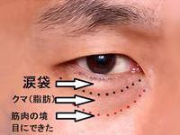 目の下のグロースファクター