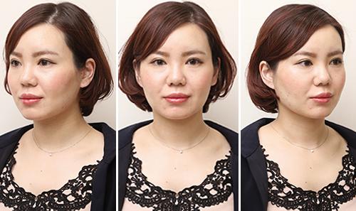 品川スキンクリニック 品川本院の人気メニュー「小顔治療」体験