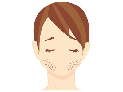 「ニキビ跡で肌に凸凹状態」の方にはトリクロロ酢酸ピーリング