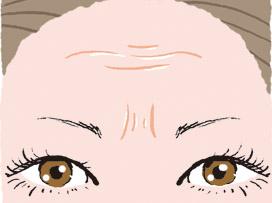 2.目尻や眉間の表情ジワにはシワ治療注射