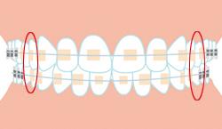 小臼歯ってどこの歯?