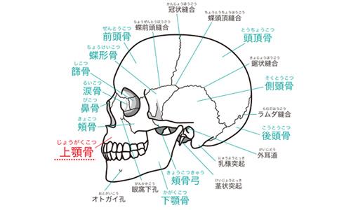 原因1)上アゴの骨格(歯茎の骨)が出っ張っている