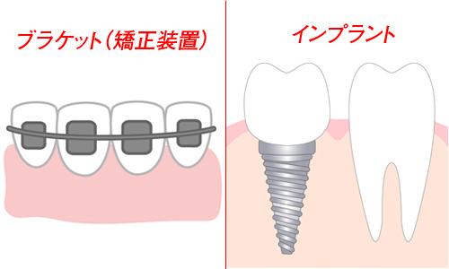 笑うと目立つ歯茎「ガミースマイル」の原因別治療法【前編】