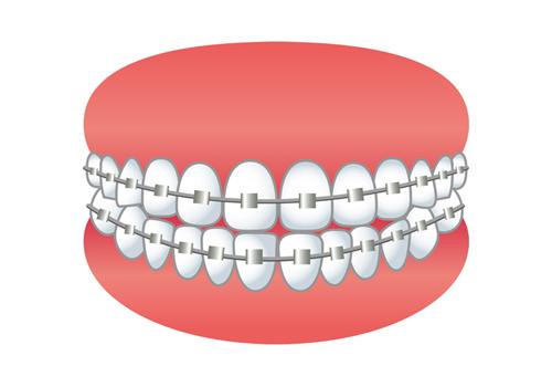 選んだ歯列矯正は、金属ブラケット