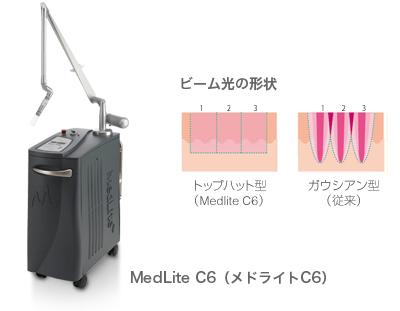 肝斑治療には「メドライトC6」