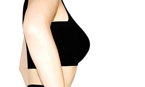 注入による豊胸術で美しいバストへ  胸を大きくするだけじゃない豊胸治療