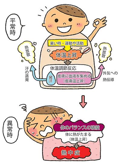 熱中症はどうして起きる?