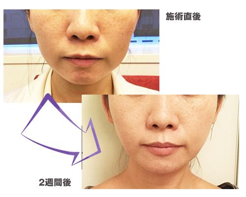 透明感のある美肌になりたい♡ 話題のピーリング「PRX-T33(マッサージピール)」体験 ! 効果はいかに?