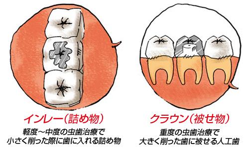 人工歯の形状は主に2種類!