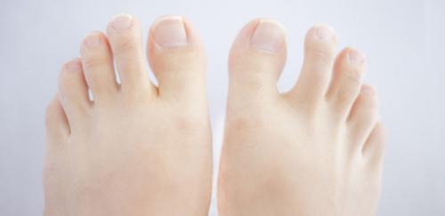 症状と予防法を知って爪水虫にならない! 秋冬にブーツを楽しむために今できること