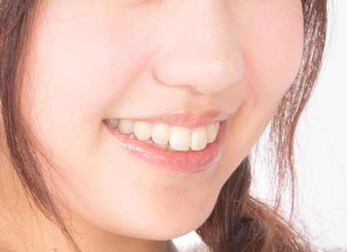 芸能人のような白い歯、歯並びを目指すなら! セラミック歯の歯列矯正