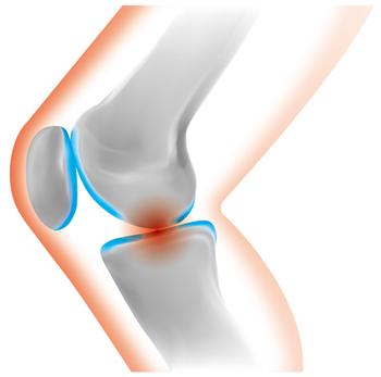 ひざの痛み「変形性ひざ関節症」の原因