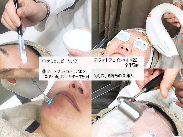【フォトフェイシャルM22】 ソバカス、シミはどこまで消える?  ニキビ、肌荒れも整え肌質改善できるのか検証! ─1クール(5回)治療再び─
