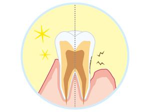 歯周病の一番の原因=プラーク(歯垢)
