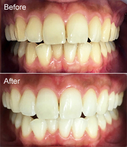 今夏の審美歯科セレクション