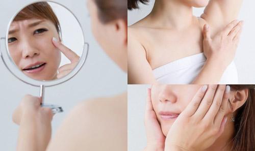 表情ジワやエラ張り、多汗症注射の効果と修正方法