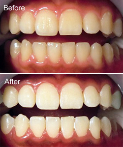 2018 新年度は美しい歯で迎える「今春の審美歯科セレクション」